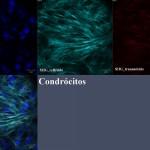 4_condrocito_shg
